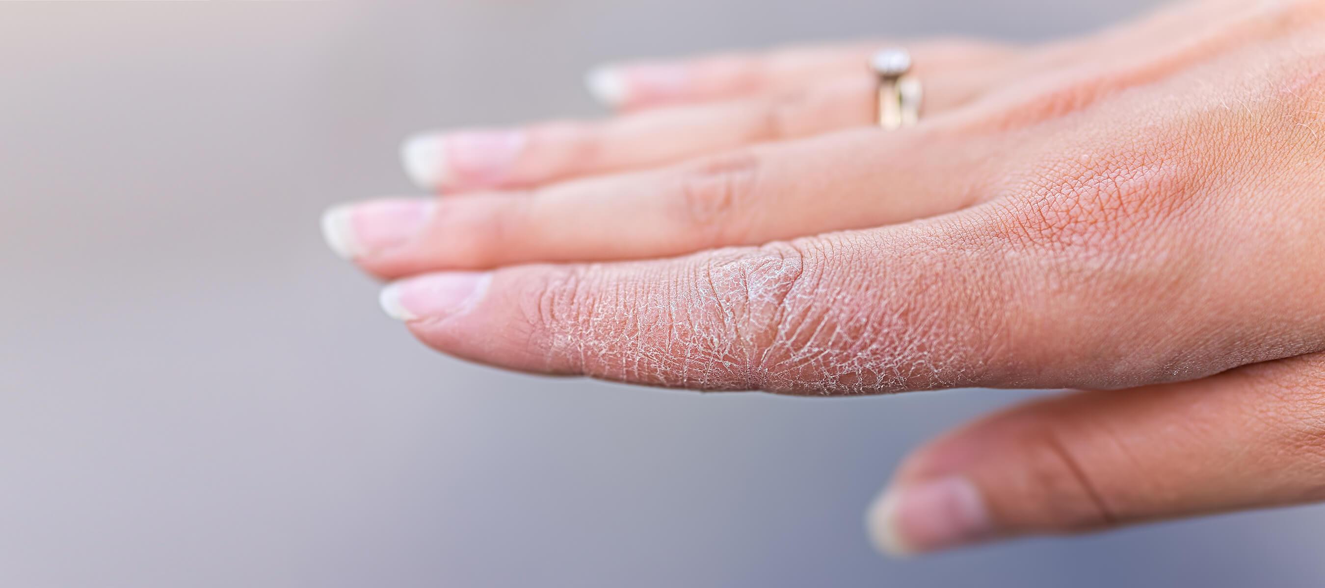 Kontakt Dermatit (Temas Egzaması) Nedir? Belirtileri ve Tedavisi Dr. Ahmet Acar